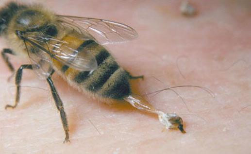 زهر زنبور عسل و روش های زهرگیری از این حشره